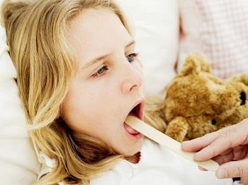 Angina ropna   Ropne zapalenie migdałków diagnozowane jest najczęściej u osób poniżej 30. roku życia, a wśród nich największy odsetek stanowią dzieci.