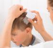 objawy wszawicy głowy