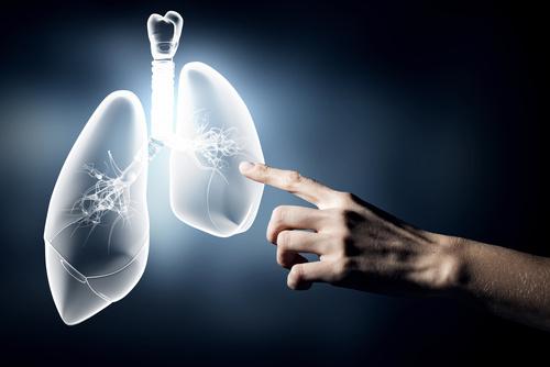 rodzaje nowotworu płuc